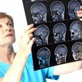 Серозний менінгіт: симптоми, лікування, наслідки