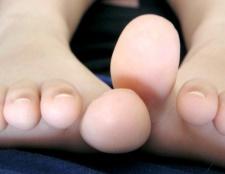 Як лікувати суглоб на нозі великого пальця
