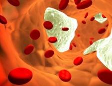 Як запобігті атеросклерозу Судін