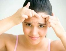 Причини, симптоми і лікування вугрової хвороби
